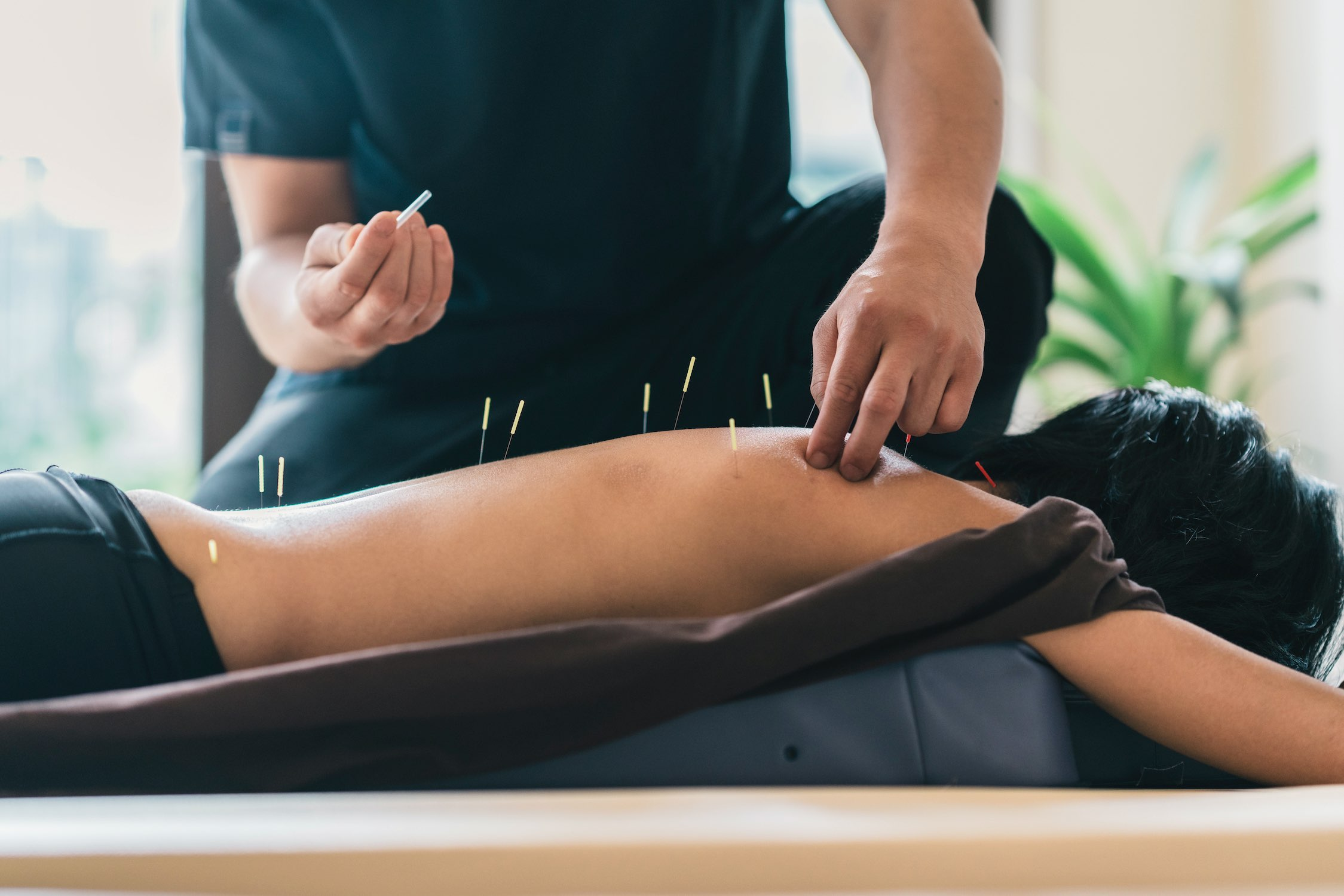 Acupuncture with a Japanese therapist